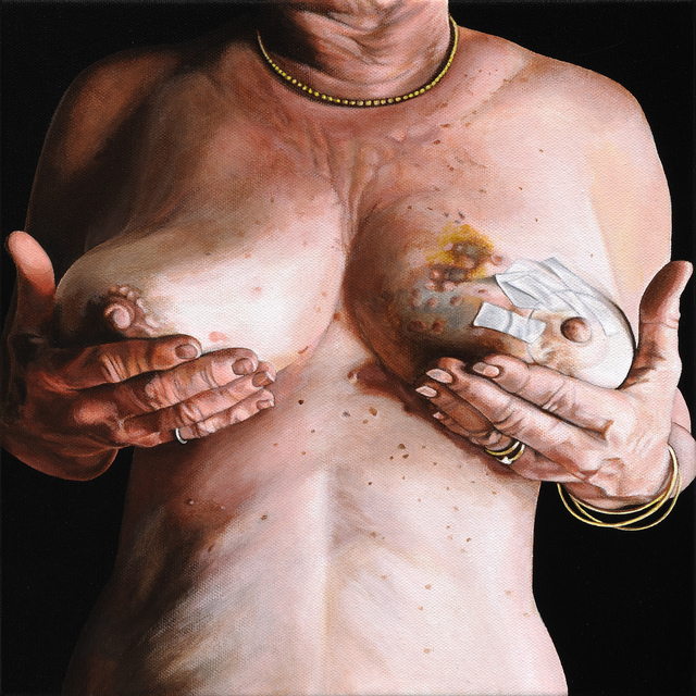 , 'Breast Portrait #7,' 2012, Catharine Clark Gallery